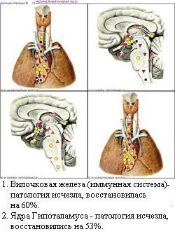 http://vd-ragel.ru/sites/default/files/u4/Капишон%20Н.%2012.jpg