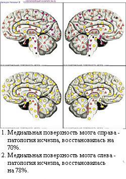 http://vd-ragel.ru/sites/default/files/u4/Капишон%20Н.%2015.jpg