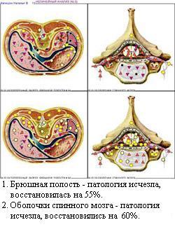 http://vd-ragel.ru/sites/default/files/u4/Капишон%20Н.%203..jpg